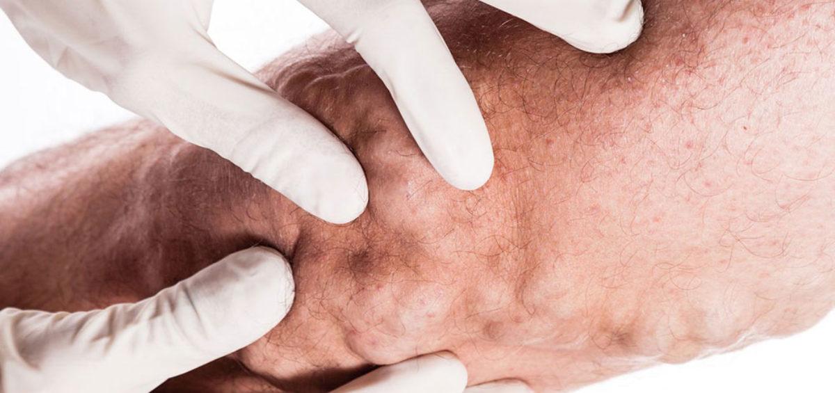 varicose veins untreated