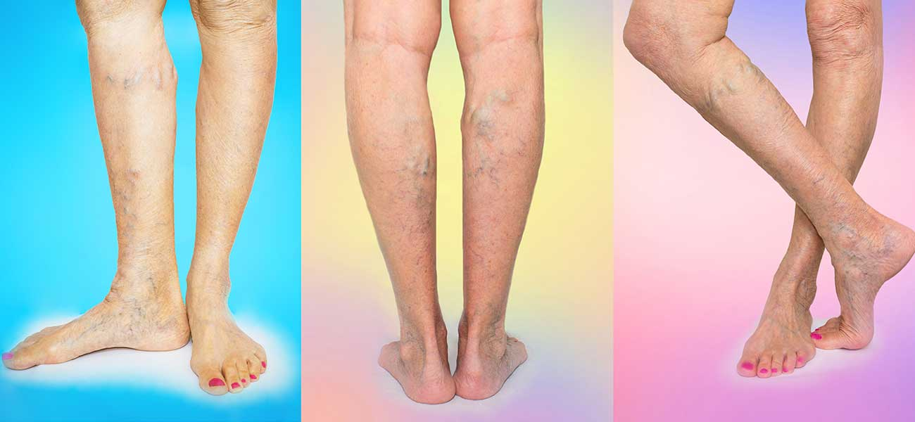 Venous Disease Diagnosis Amp Treatment At The Miami Vein Center