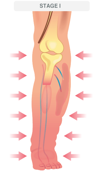 deep vein thrombosis illustration 3