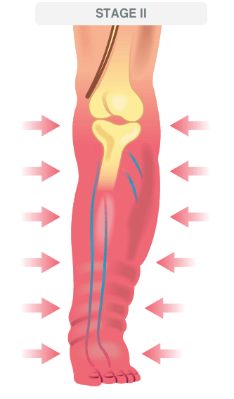 deep vein thrombosis illustration 2