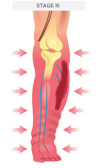 deep vein thrombosis illustration 1