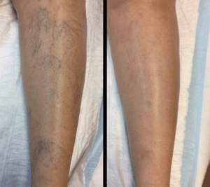 Sclerotherapy Miami - Before and After
