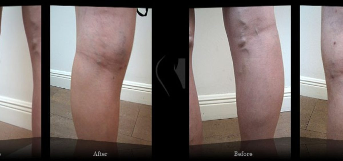 phlebitis of the legs - Results - Video Reviews Miami Vein Center - B&A