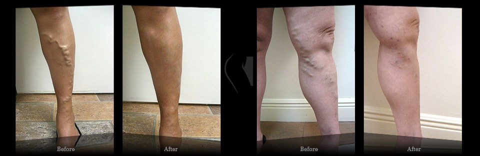 Results Miami Vein Center - Video Reviews - B&A