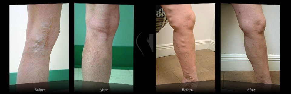 Results Miami Vein Center - Video Reviews Miami Vein Center - B&A