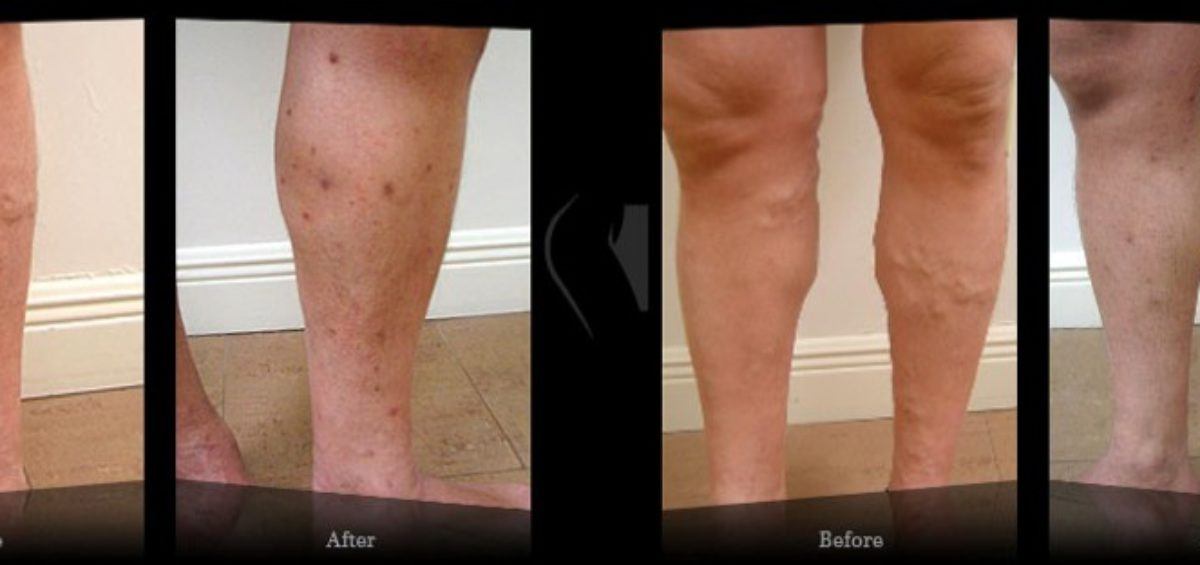 Stasis Dermatitis Causing Leg Discoloration | Dr. Almeida