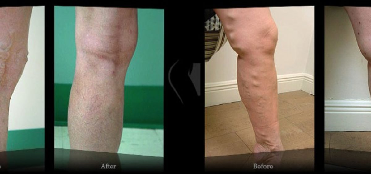Varicose veins during pregnancy - Results Miami Vein Center - Video Reviews Miami Vein Center - B&A