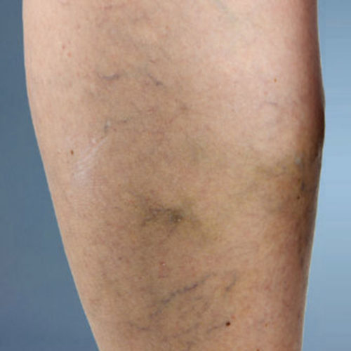 Causes of Venous Diseases - Spider Veins Miami