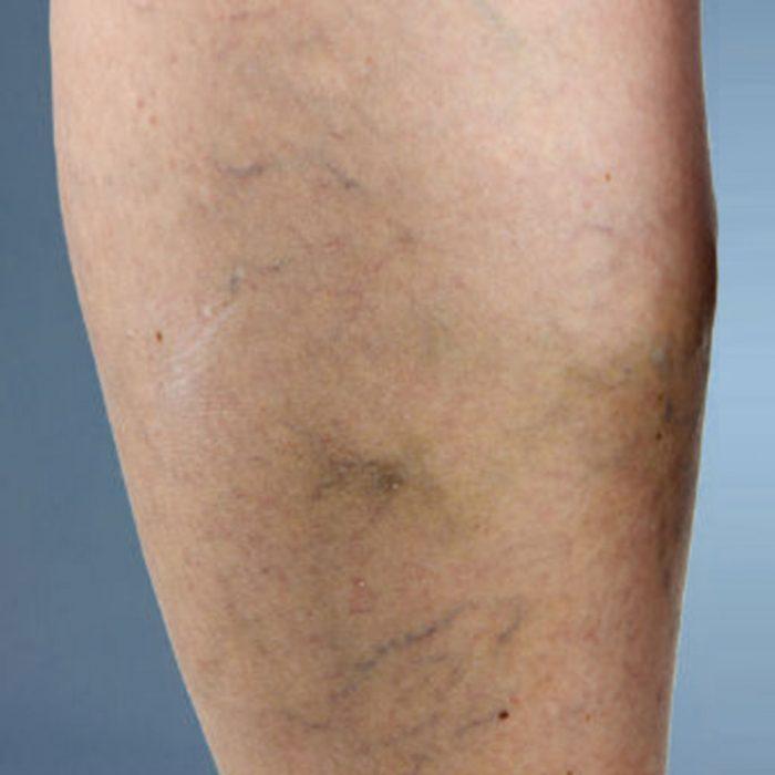 Causes of Venous Diseases - Spider Veins Miami