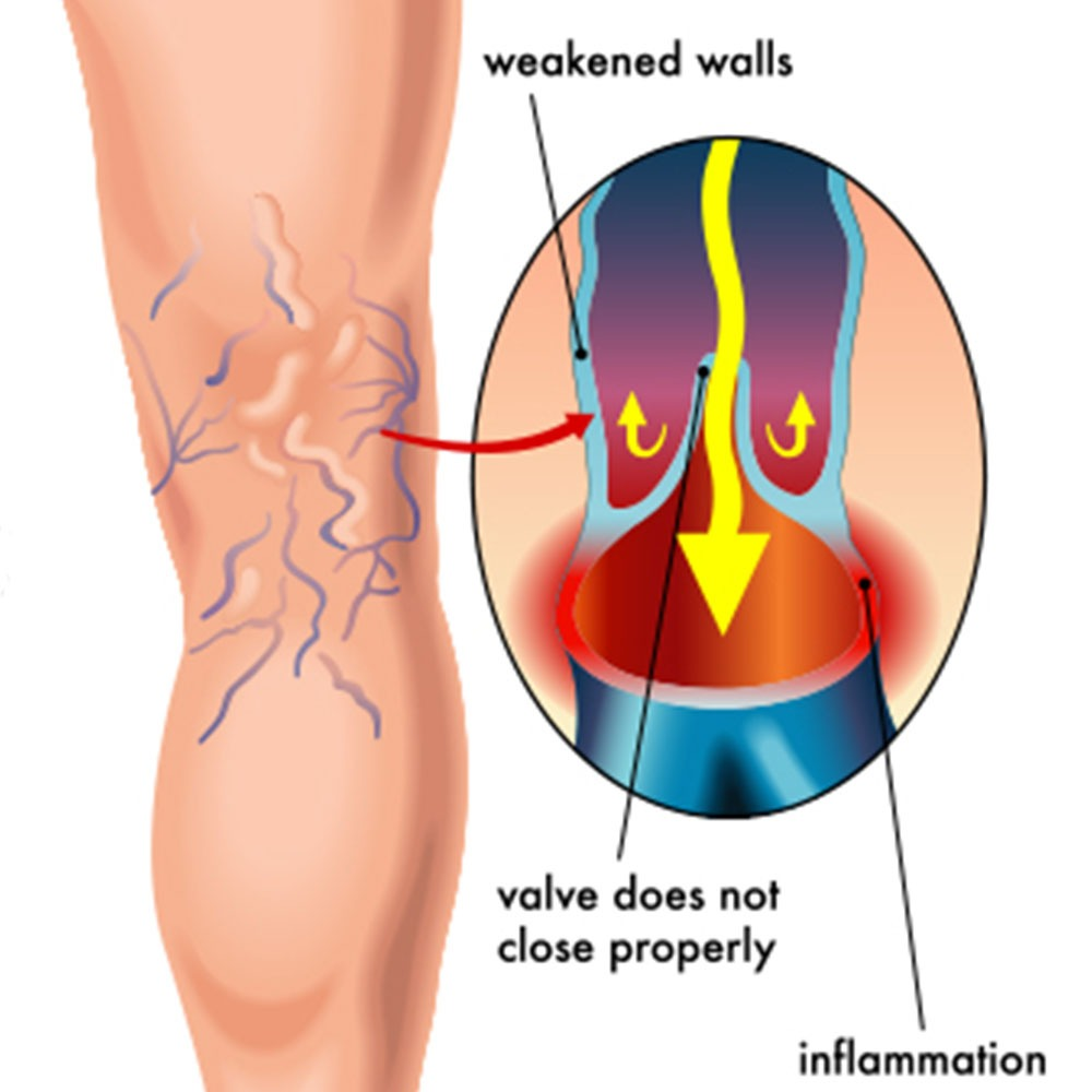 Varicose Veins Treatments With Dr Almeida At Miami Vein Center