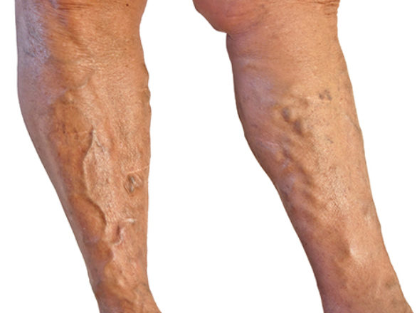 Varicose Veins Miami - Symptoms