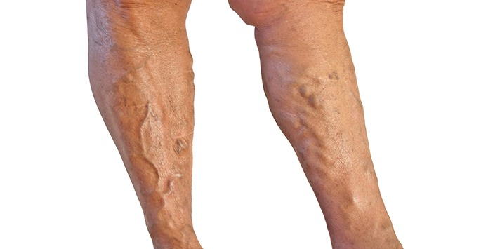 Home Remedies for Varicose Veins: Truth or Fraud?