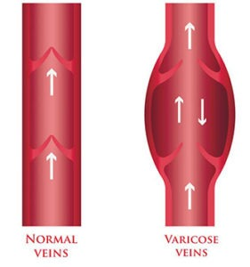 varicose vein vs normal vein illustration at the Miami vein center
