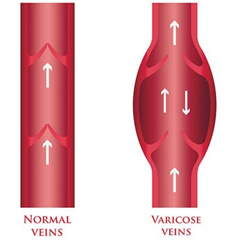what are varicose veins vs normal veins illustration at the Miami vein center