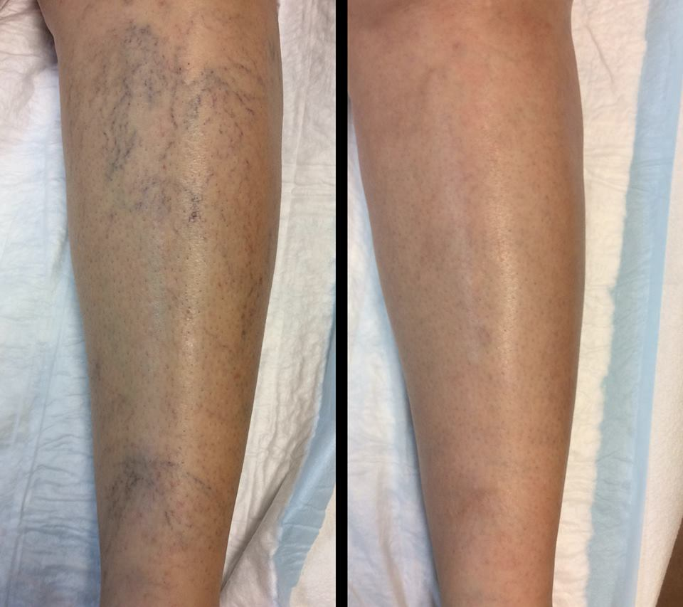 Spider Veins Miami Causes And Treatment Miami Vein Center