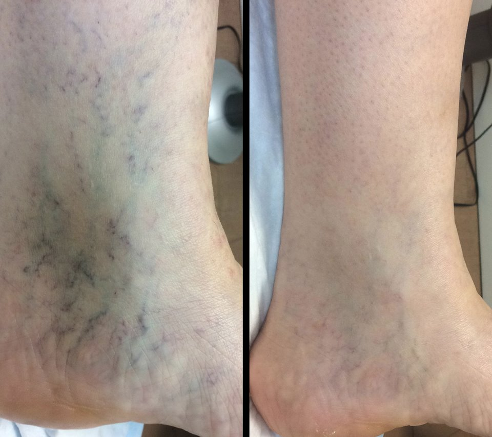 What is Sclerotherapy and How Does It Work?