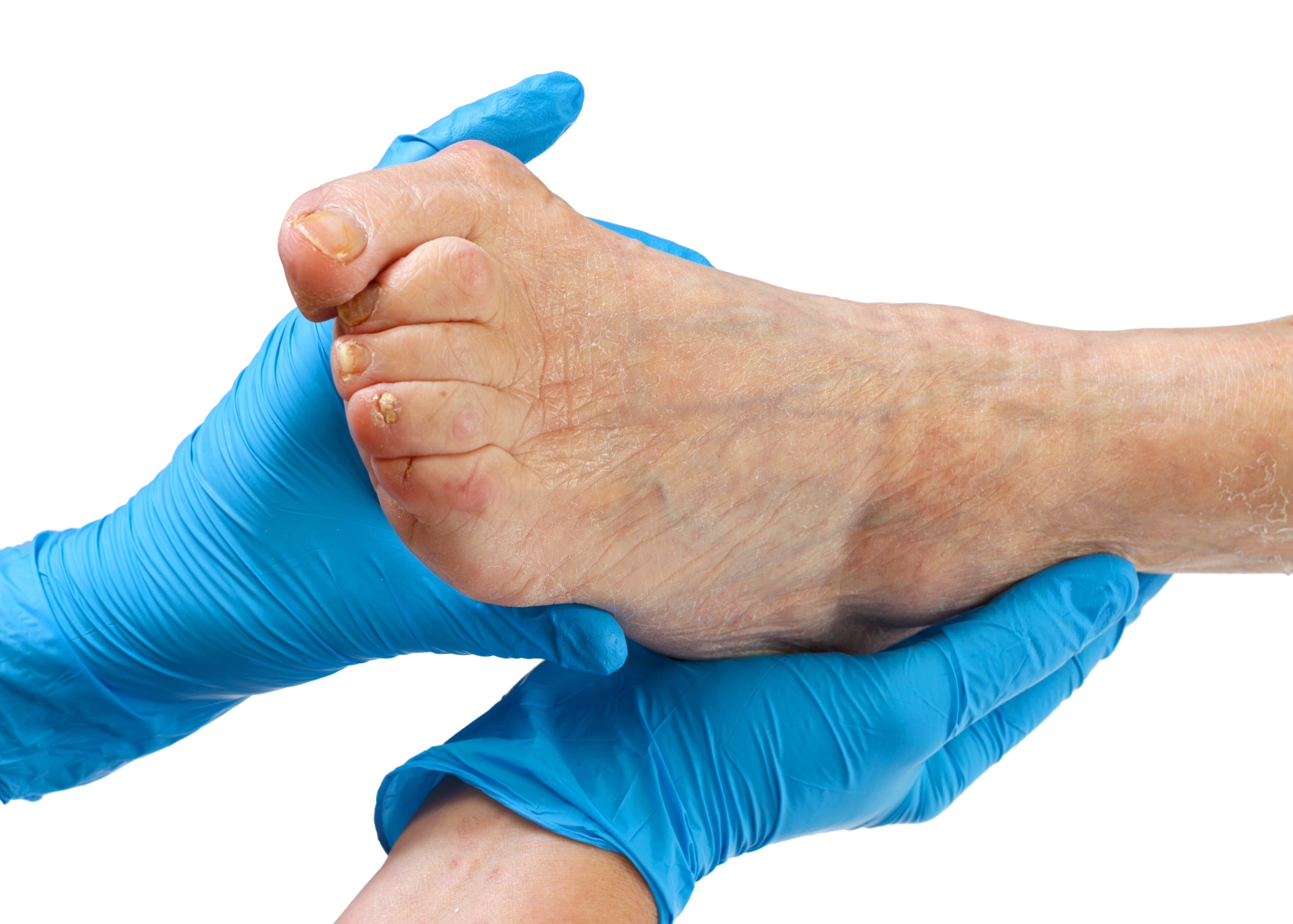 Is Ankle and Leg Swelling 'Normal'?