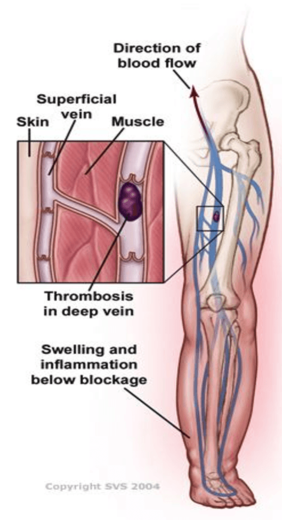 bbaab976a6 Over the long-term, blood pressure that is higher than normal inside your  leg veins causes CVI. This can lead to damage to the valves, which can  further ...