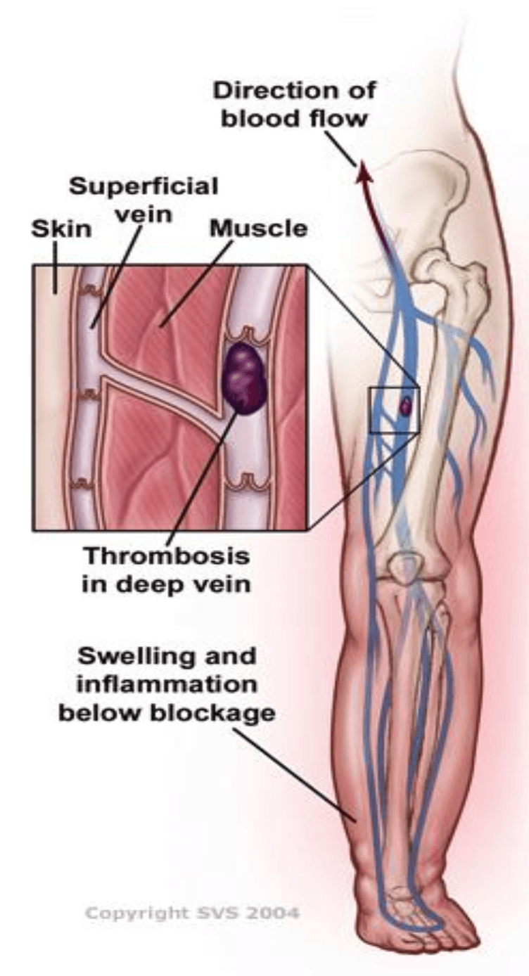 Chronic Venous Insufficiency Guide | Symptoms, Causes & Treatments