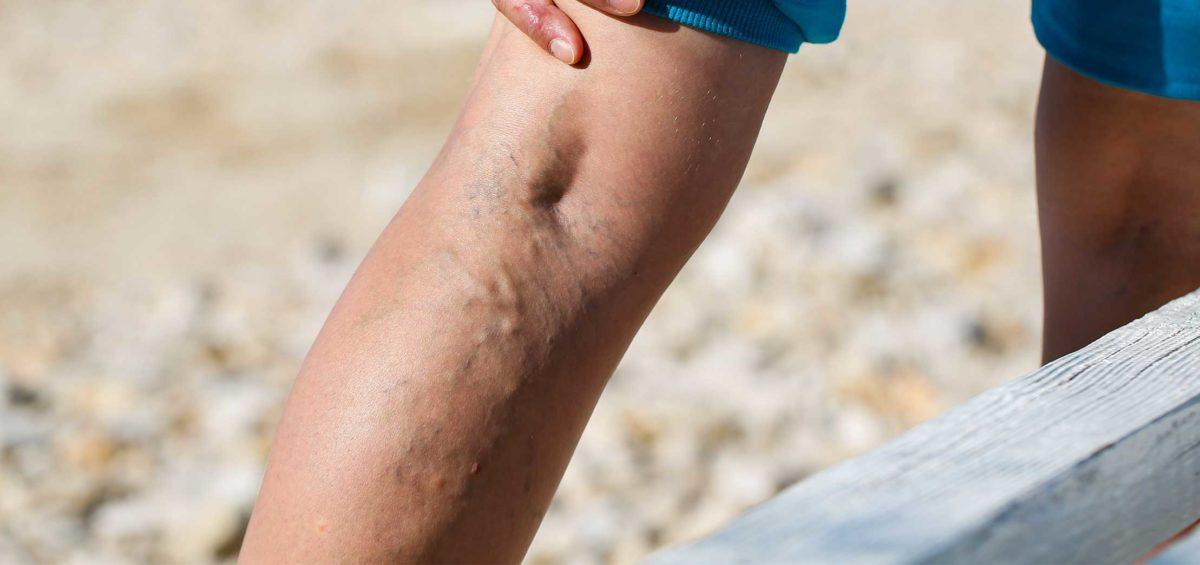 varicose veins cause pelvic congestion