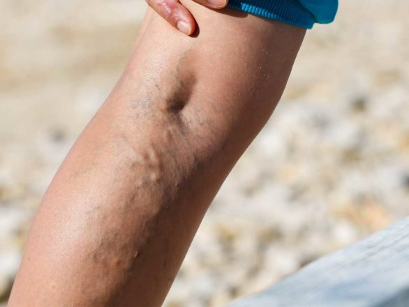 Leg Pain u0026 Swelling After DVT Treatment? | Miami Vein Center.