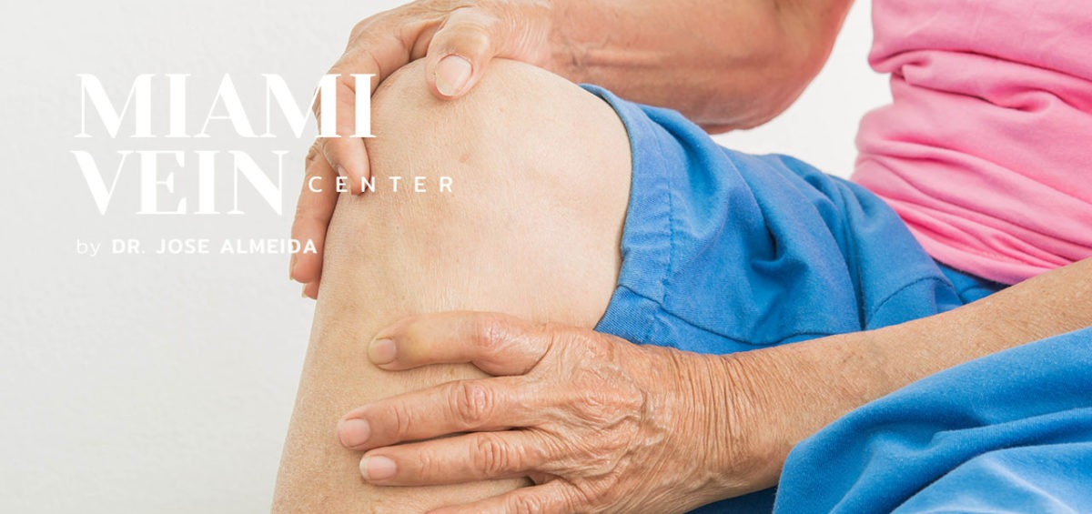 varicose veins pain - sudden bleeding from the legs