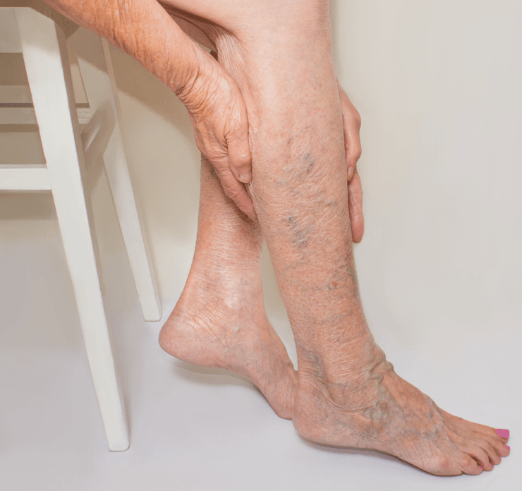 candidate for varicose vein surgery