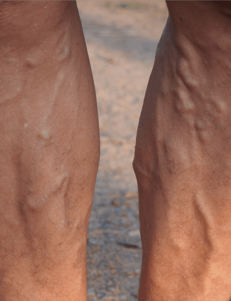 varicose veins in men