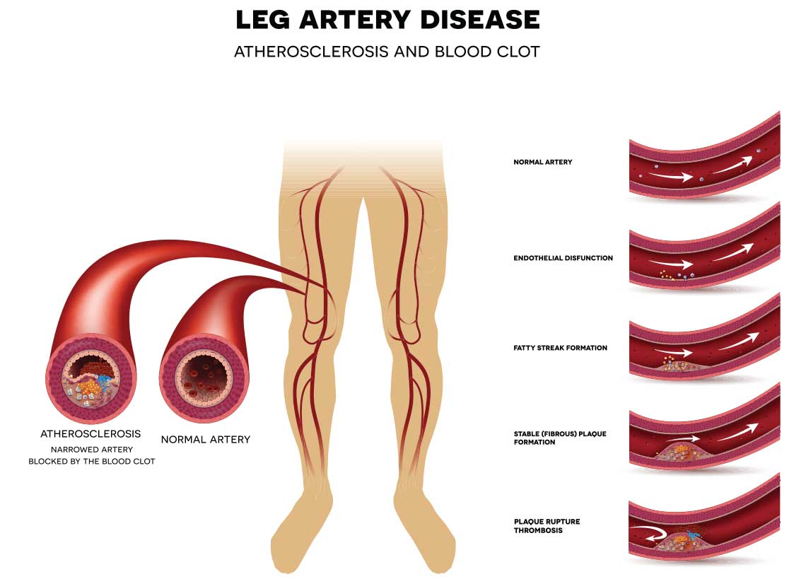 leg artery disease illustration