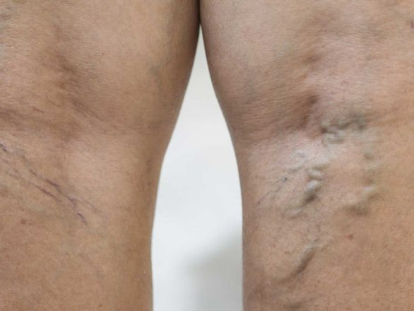 legs with spider veins and varicose veins