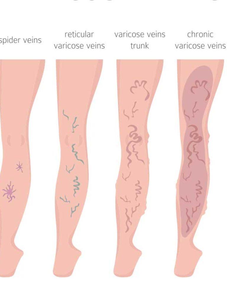 vein disease stages diagram
