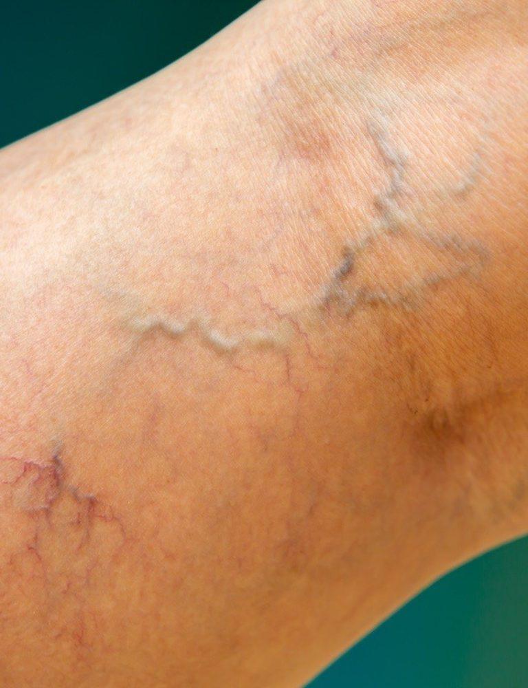 spider veins legs